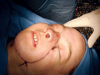 Face Transplant Patient Speaks Out