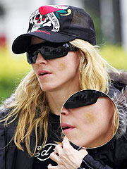 Madonna Bruised By Paparazzi