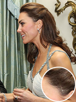 Duchess of Cambridge Scarred by Childhood Operation