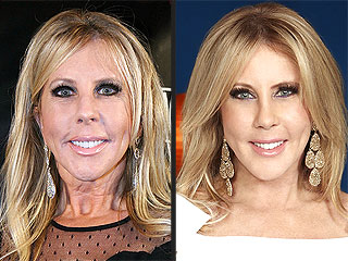 Real Housewives of Orange County: Vicki Gunvalson Reveals Post-Plastic Surgery Face