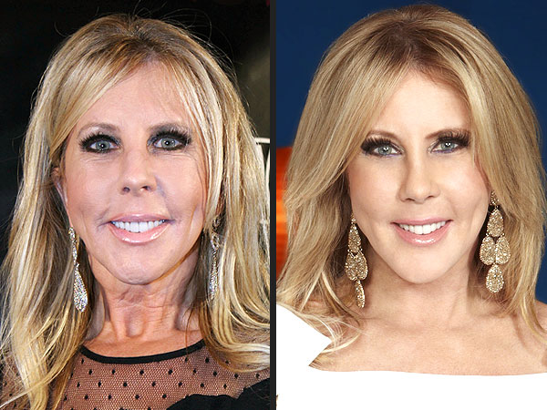 Real Housewives of Orange County: Vicki Gunvalson Post-Plastic Surgery