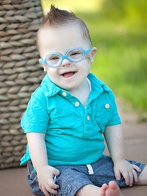 Renner Wollman, South Dakota Baby Given a Slim Chance of Living, Turns 2