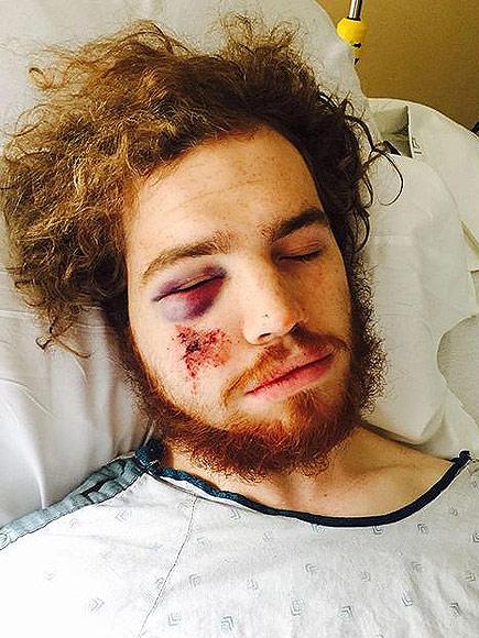 Attack on Cyclist Mackenzie Jensen Part of Minneapolis Spree