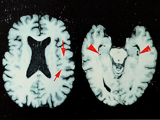 What is CTE? All About Chronic Traumatic Encephalopathy, the Disease Plaguing Former American Football Players