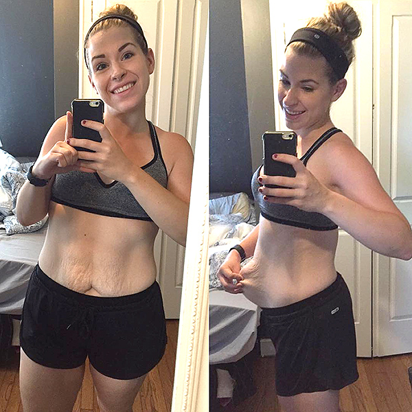 150 lb weight loss skin tightening