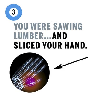 you sliced your hand sawing lumber