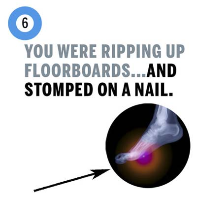 you stomped on a nail